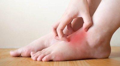 Hongos en los pies: cómo evitarlos