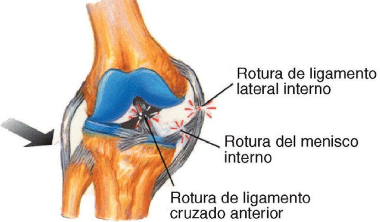 Estas son las tres zonas afectadas por esta lesión